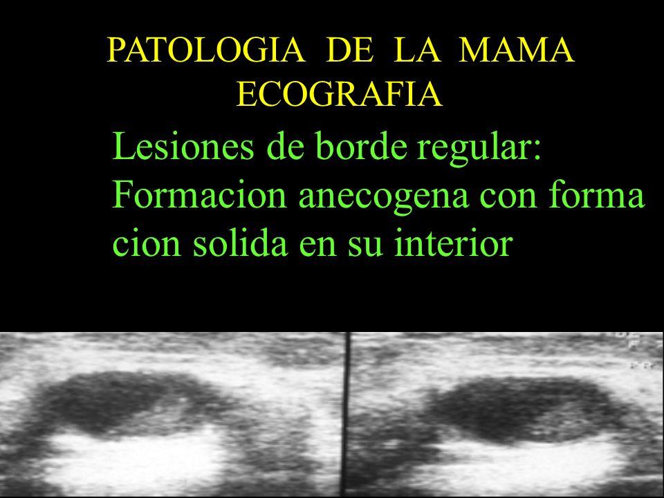 PATOLOGIA DE LA MAMA ECOGRAFIA Lesiones de borde regular: Formacion anecogena con forma cion solida en su interior