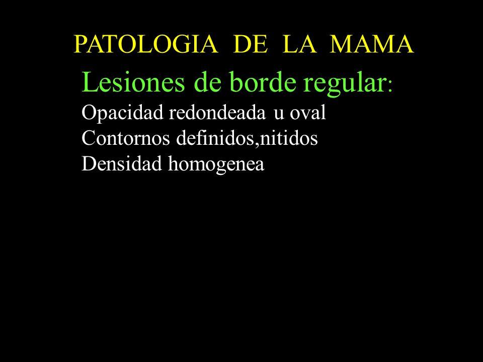 PATOLOGIA DE LA MAMA Lesiones de borde regular : Opacidad redondeada u oval Contornos definidos,nitidos Densidad homogenea