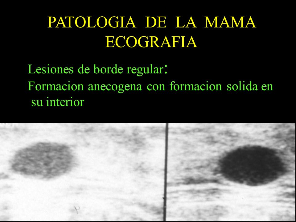 PATOLOGIA DE LA MAMA ECOGRAFIA Lesiones de borde regular : Formacion anecogena con formacion solida en su interior