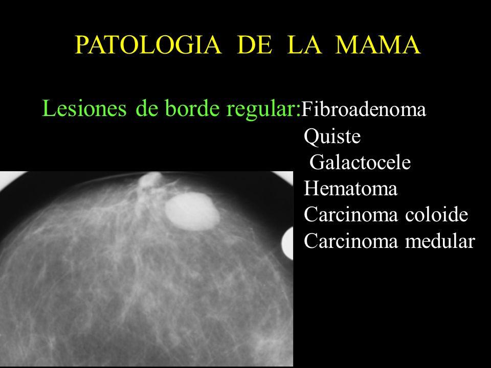 PATOLOGIA DE LA MAMA Lesiones de borde regular: Fibroadenoma Quiste Galactocele Hematoma Carcinoma coloide Carcinoma medular