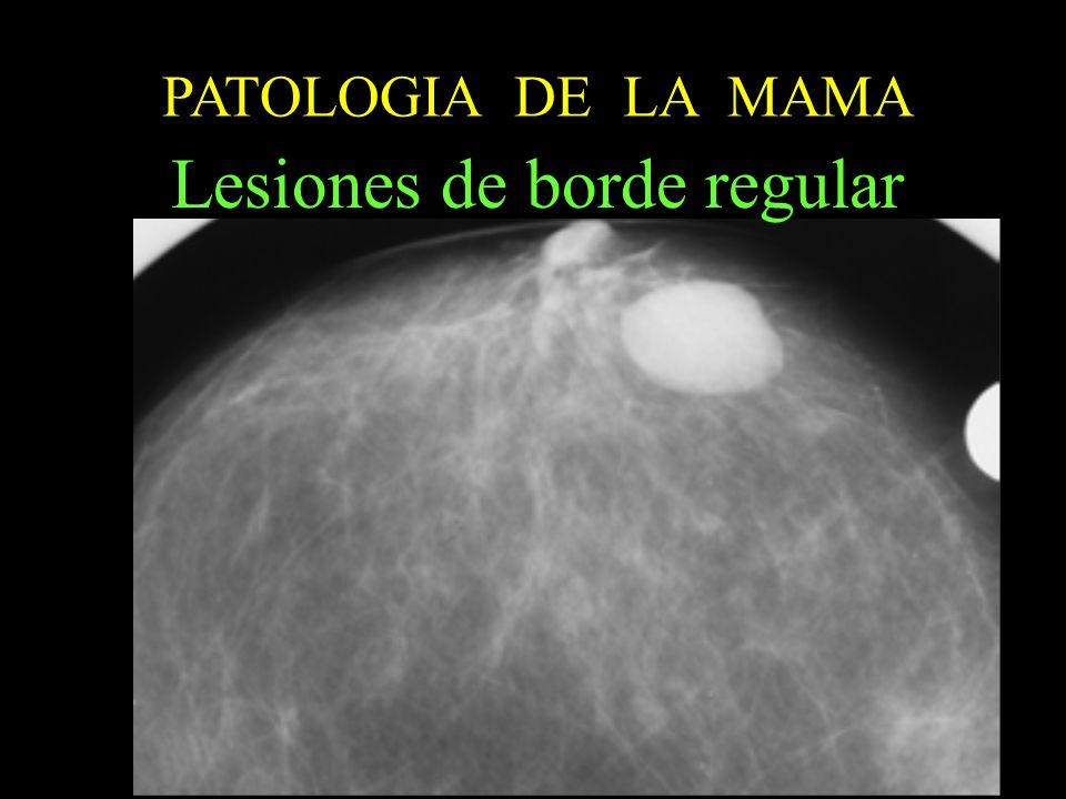 PATOLOGIA DE LA MAMA Lesiones de borde regular Sistematica de estudio: 1º mamografia:Lesion con bordes nitidos,regulares 2ºecografia.