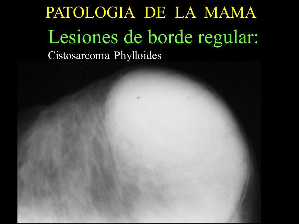 PATOLOGIA DE LA MAMA ECOGRAFIA Lesiones de borde regular : Formacion anecogena con formacion solida en su in terior