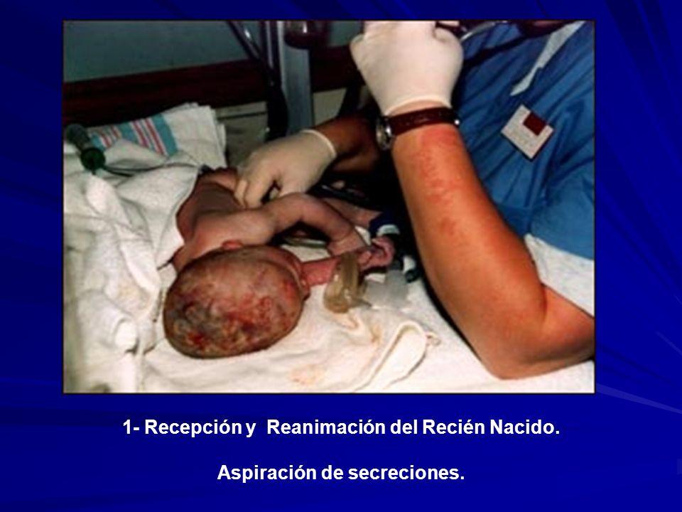 1- Recepción y Reanimación del Recién Nacido. Aspiración de secreciones.