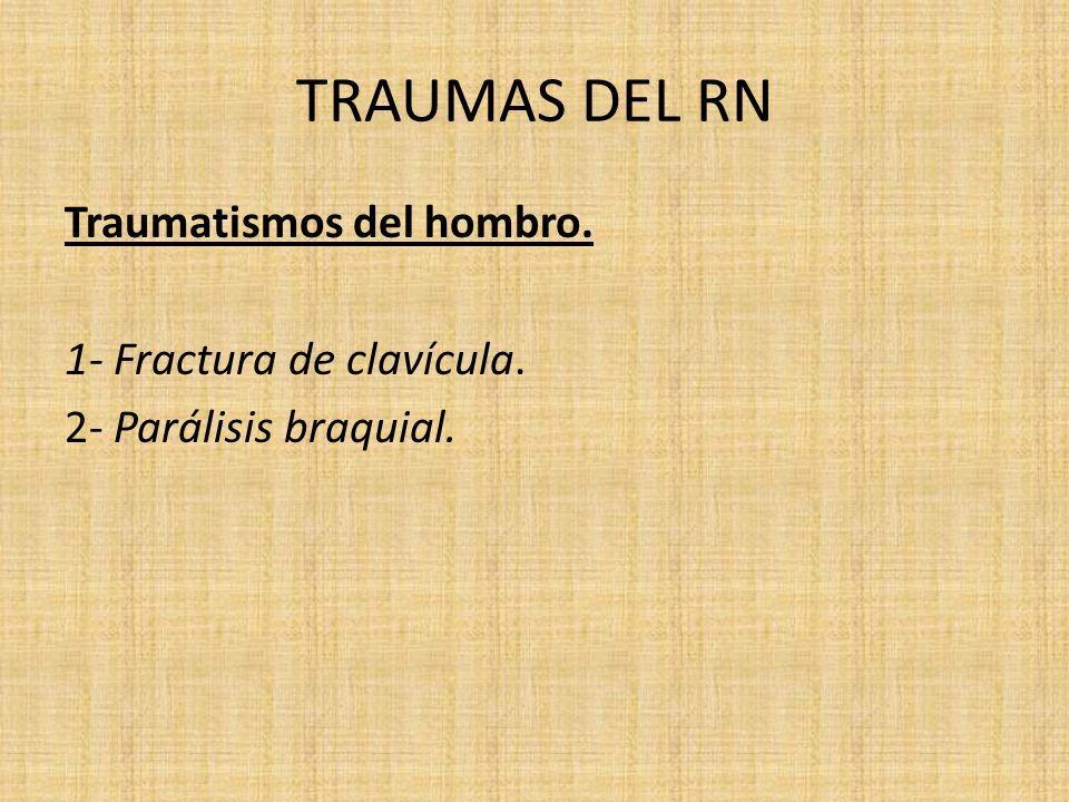 TRAUMAS DEL RN Traumatismos del hombro. 1- Fractura de clavícula. 2- Parálisis braquial.
