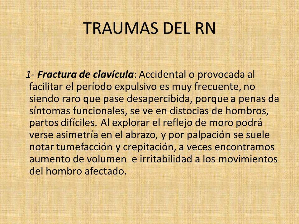 TRAUMAS DEL RN 1- Fractura de clavícula: Accidental o provocada al facilitar el período expulsivo es muy frecuente, no siendo raro que pase desapercib