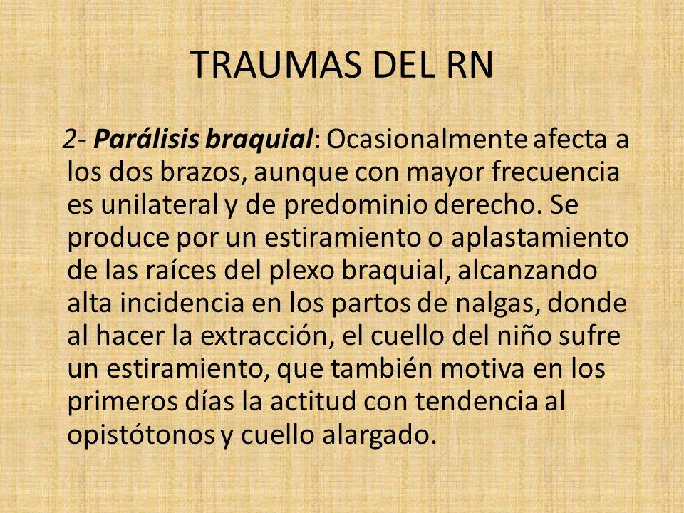TRAUMAS DEL RN 2- Parálisis braquial: Ocasionalmente afecta a los dos brazos, aunque con mayor frecuencia es unilateral y de predominio derecho. Se pr