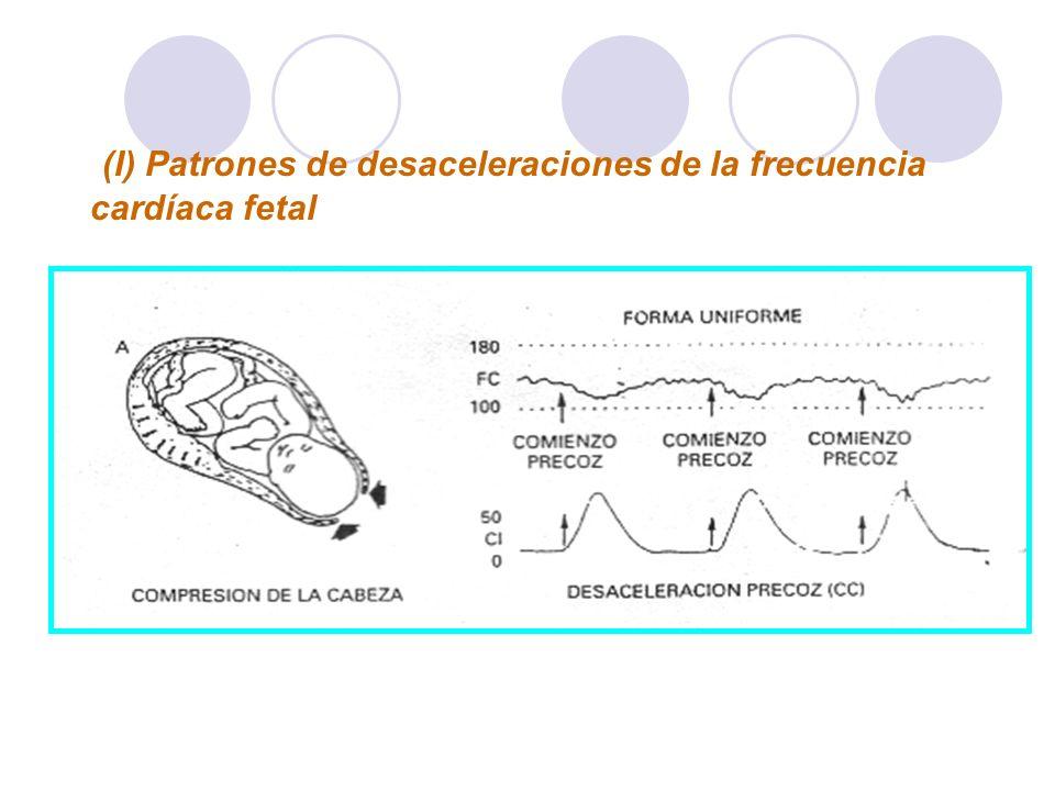 (I) Patrones de desaceleraciones de la frecuencia cardíaca fetal El registro de A muestra una desaceleración precoz que se produce durante el punto má