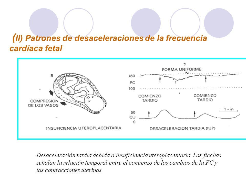 ( II) Patrones de desaceleraciones de la frecuencia cardíaca fetal Desaceleración tardía debida a insuficiencia uteroplacentaria. Las flechas señalan