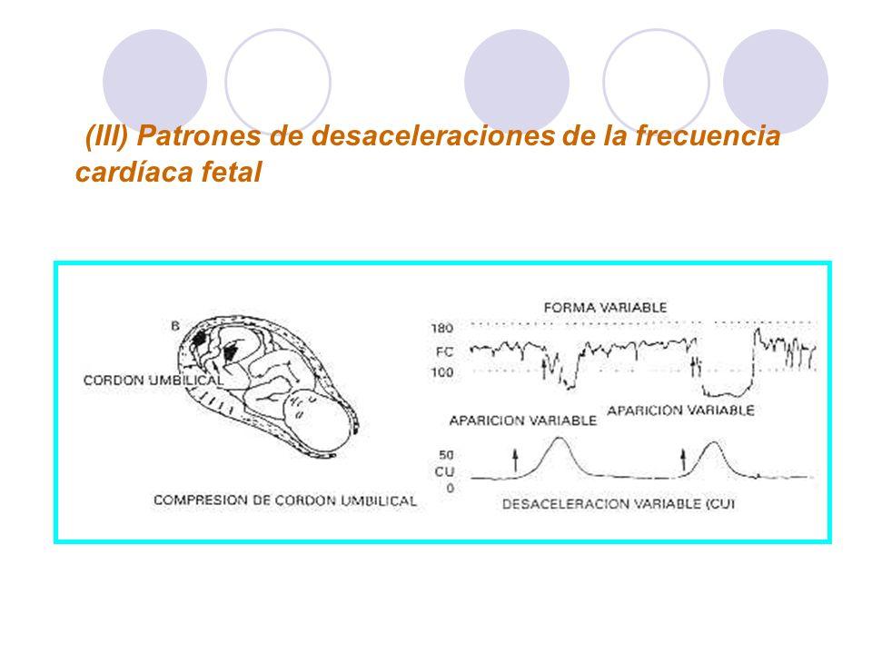 (III) Patrones de desaceleraciones de la frecuencia cardíaca fetal Desaceleración variable secundaria a compresión del cordón umbilical. Las flechas s