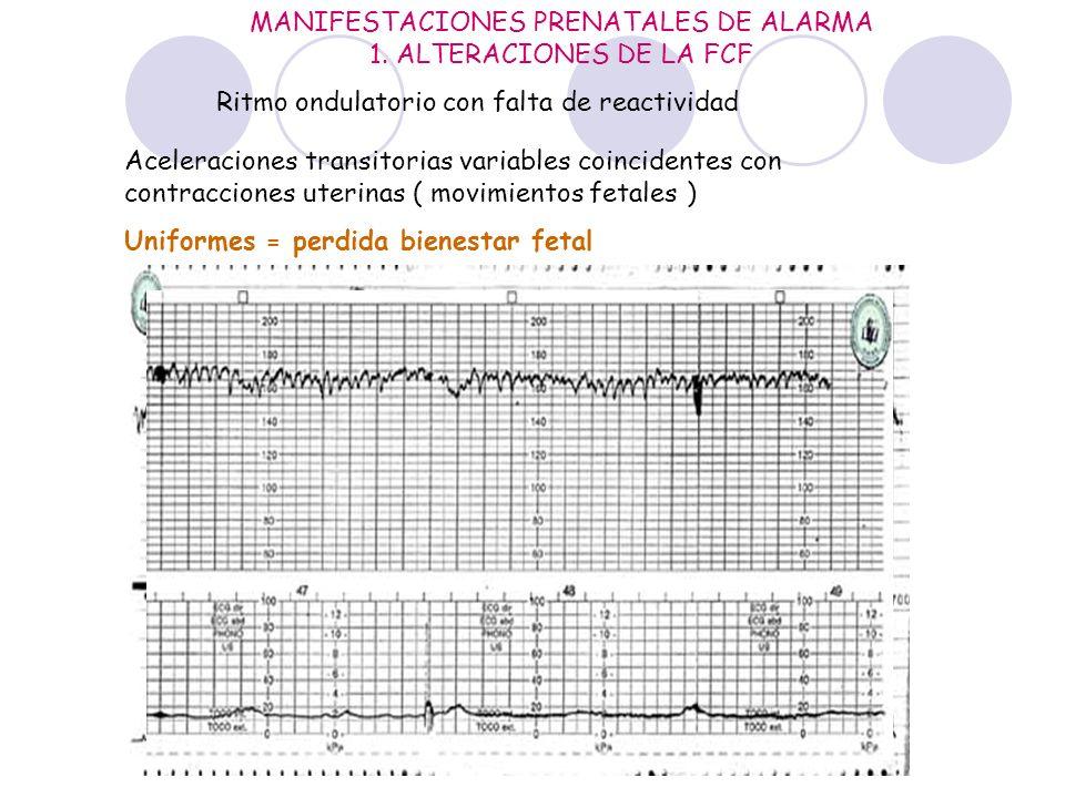MANIFESTACIONES PRENATALES DE ALARMA 1. ALTERACIONES DE LA FCF Aceleraciones transitorias variables coincidentes con contracciones uterinas ( movimien