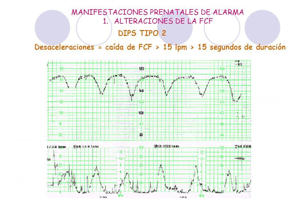 MANIFESTACIONES PRENATALES DE ALARMA 1.ALTERACIONES DE LA FCF Desaceleraciones = caída de FCF > 15 lpm > 15 segundos de duración DIPS TIPO 1 DIPS TIPO