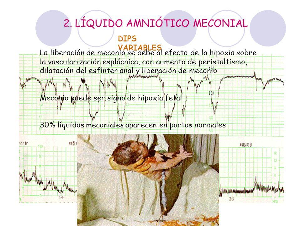 DIPS VARIABLES 2. LÍQUIDO AMNIÓTICO MECONIAL La liberación de meconio se debe al efecto de la hipoxia sobre la vascularización esplácnica, con aumento