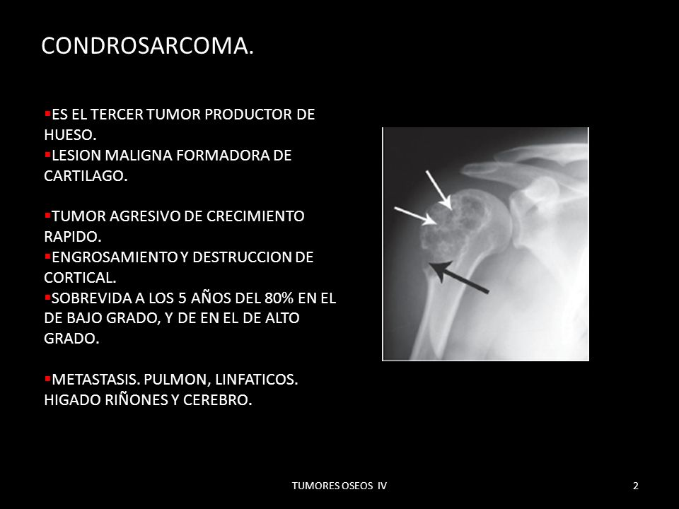 HEMANGIOPERICITOMA OSEO.SE FORMA DE CELULAS DE ZIMMERMAN.