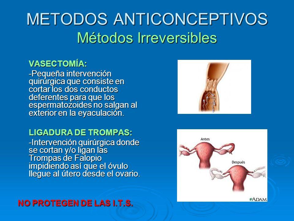 METODOS ANTICONCEPTIVOS Métodos Irreversibles VASECTOMÍA: -Pequeña intervención quirúrgica que consiste en cortar los dos conductos deferentes para qu