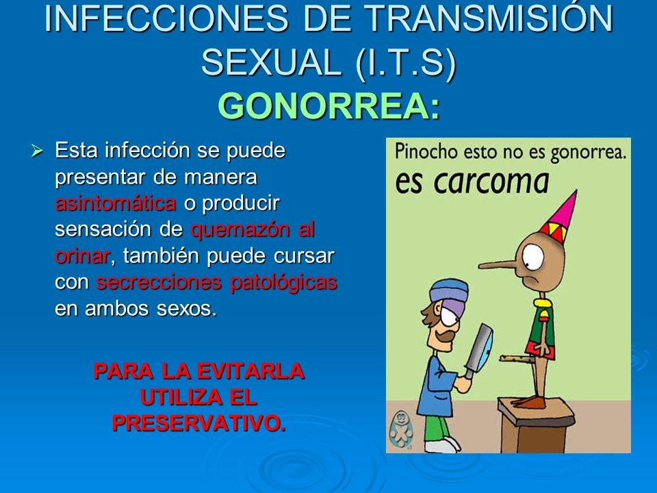 INFECCIONES DE TRANSMISIÓN SEXUAL (I.T.S) GONORREA: Esta infección se puede presentar de manera asintomática o producir sensación de quemazón al orina