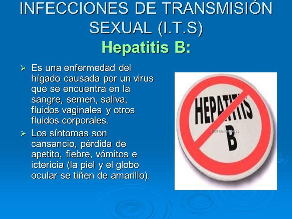 INFECCIONES DE TRANSMISIÓN SEXUAL (I.T.S) Hepatitis B: Es una enfermedad del hígado causada por un virus que se encuentra en la sangre, semen, saliva,