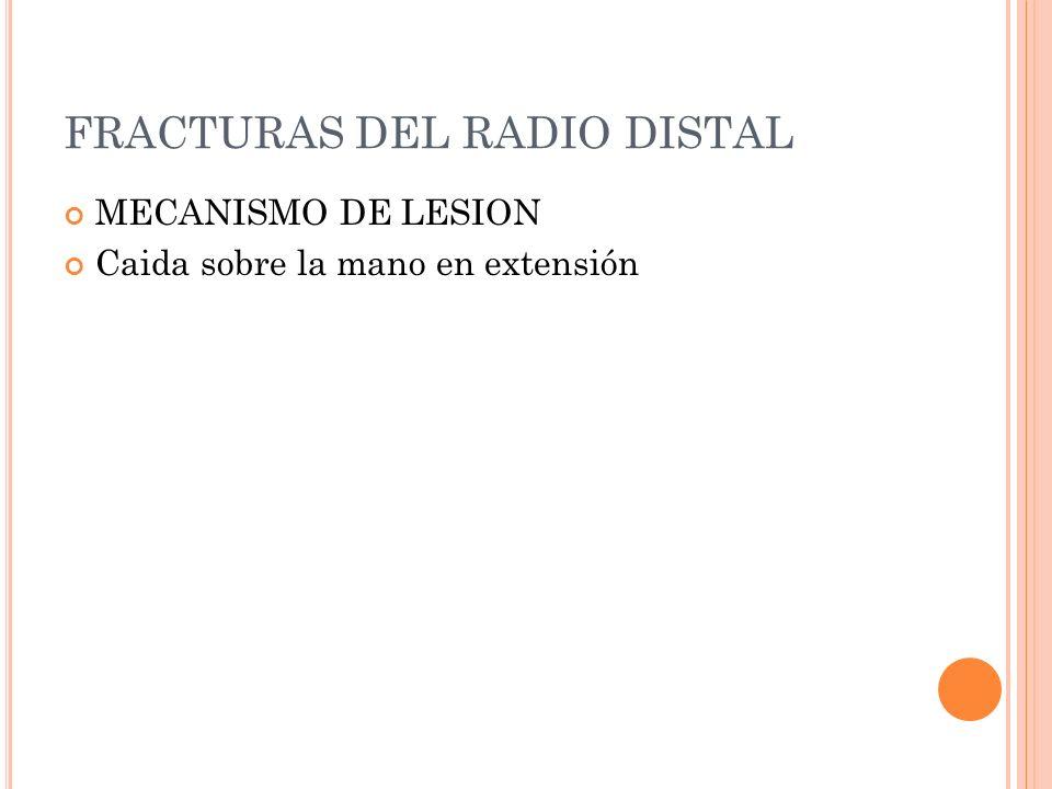 FRACTURAS DEL RADIO DISTAL MECANISMO DE LESION Caida sobre la mano en extensión
