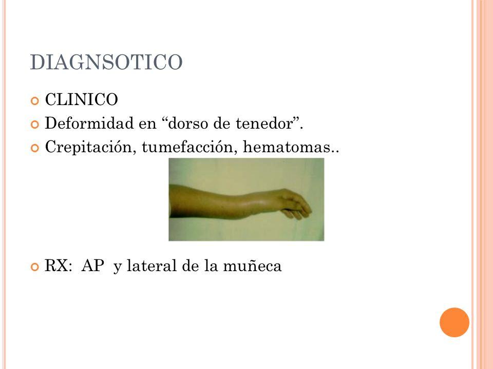 DIAGNSOTICO CLINICO Deformidad en dorso de tenedor. Crepitación, tumefacción, hematomas.. RX: AP y lateral de la muñeca