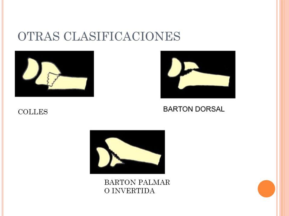 OTRAS CLASIFICACIONES COLLES BARTON PALMAR O INVERTIDA