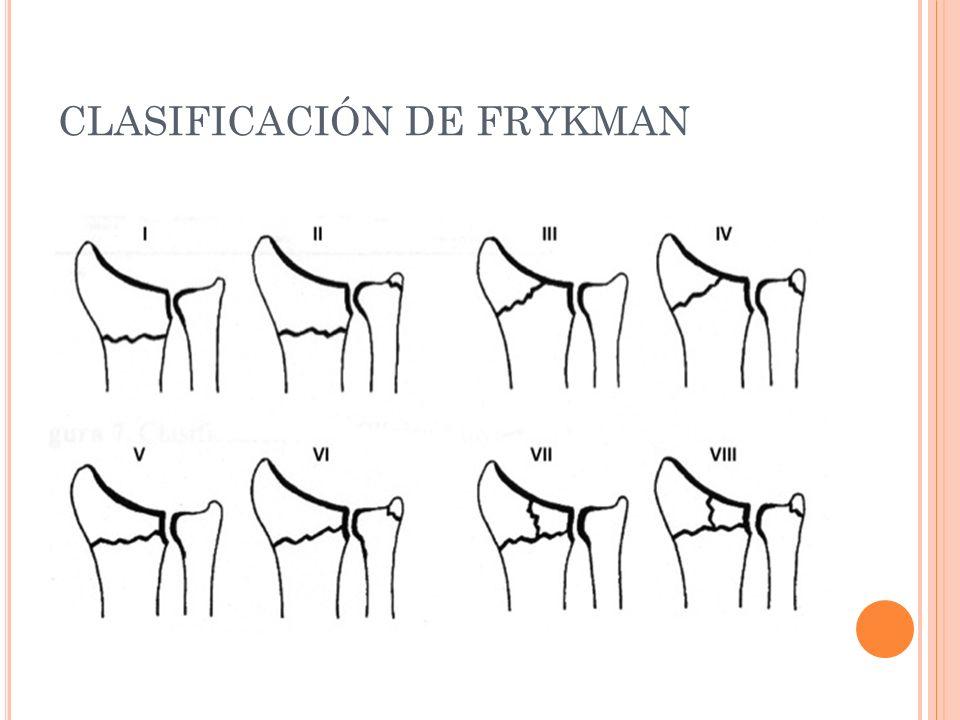 CLASIFICACIÓN DE FRYKMAN