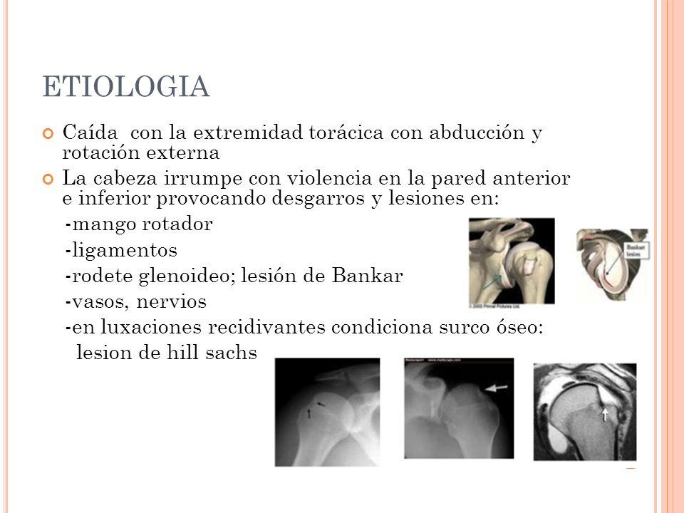 ETIOLOGIA Caída con la extremidad torácica con abducción y rotación externa La cabeza irrumpe con violencia en la pared anterior e inferior provocando