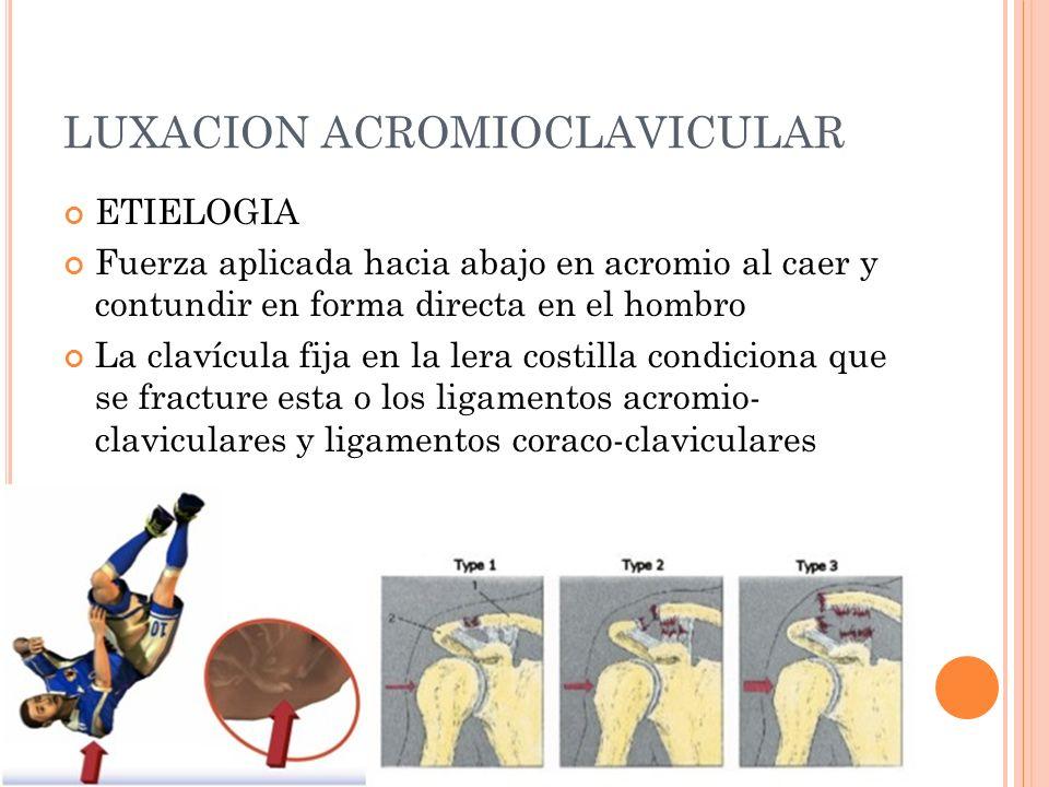 LUXACION ACROMIOCLAVICULAR ETIELOGIA Fuerza aplicada hacia abajo en acromio al caer y contundir en forma directa en el hombro La clavícula fija en la