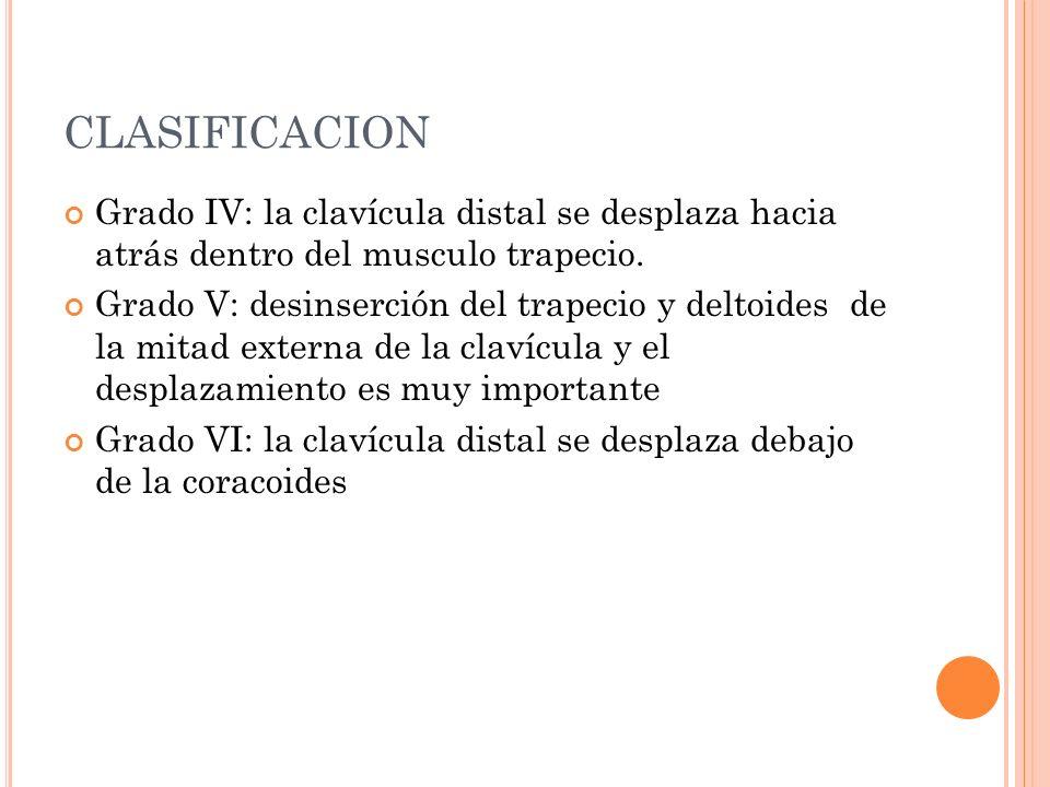 CLASIFICACION Grado IV: la clavícula distal se desplaza hacia atrás dentro del musculo trapecio. Grado V: desinserción del trapecio y deltoides de la