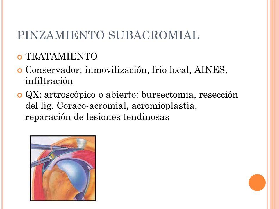 PINZAMIENTO SUBACROMIAL TRATAMIENTO Conservador; inmovilización, frio local, AINES, infiltración QX: artroscópico o abierto: bursectomia, resección de