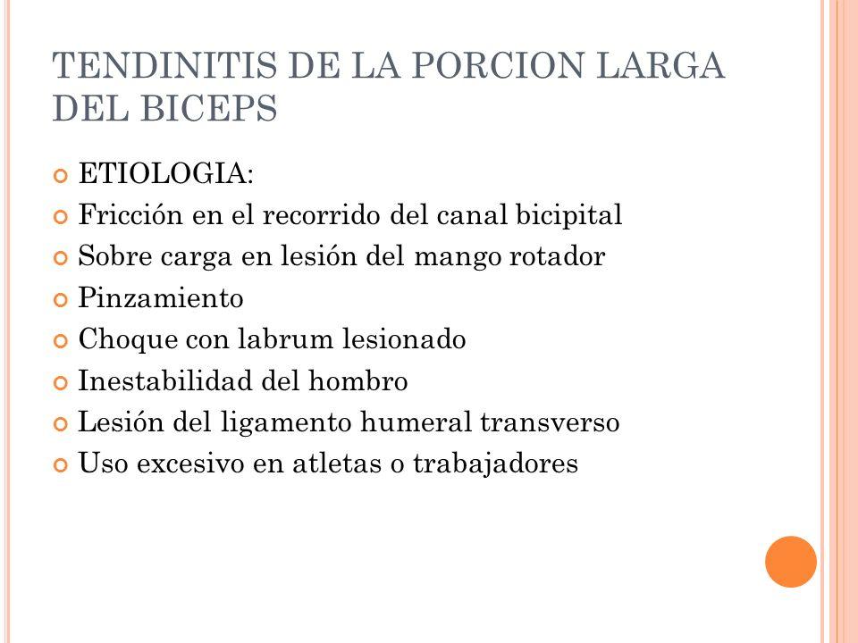 TENDINITIS DE LA PORCION LARGA DEL BICEPS ETIOLOGIA: Fricción en el recorrido del canal bicipital Sobre carga en lesión del mango rotador Pinzamiento