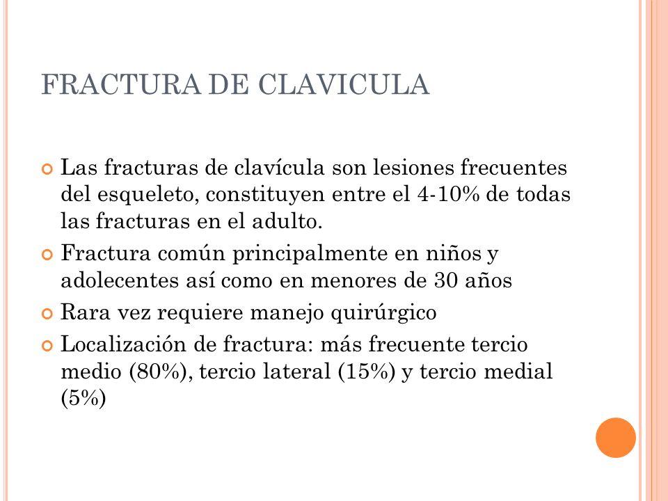 FRACTURA DE CLAVICULA Las fracturas de clavícula son lesiones frecuentes del esqueleto, constituyen entre el 4-10% de todas las fracturas en el adulto