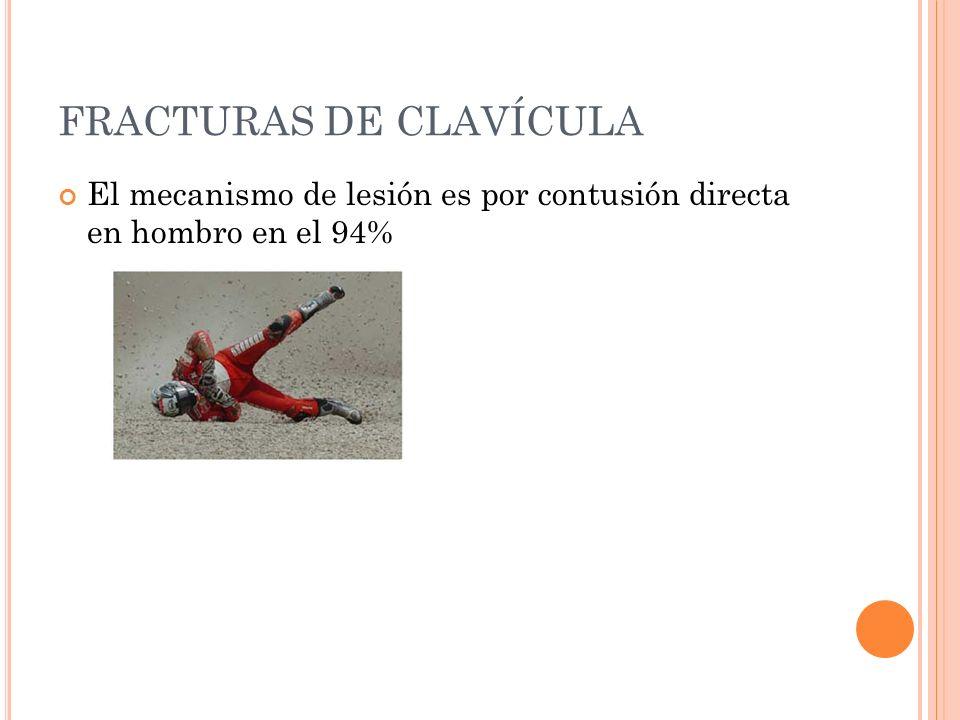FRACTURAS DE CLAVÍCULA El mecanismo de lesión es por contusión directa en hombro en el 94%