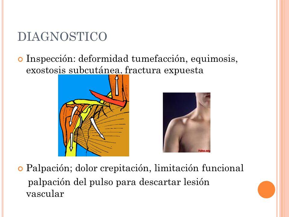 DIAGNOSTICO Inspección: deformidad tumefacción, equimosis, exostosis subcutánea, fractura expuesta Palpación; dolor crepitación, limitación funcional