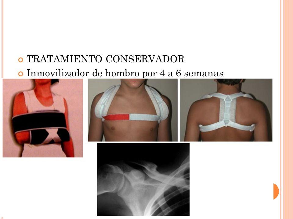 TRATAMIENTO CONSERVADOR Inmovilizador de hombro por 4 a 6 semanas
