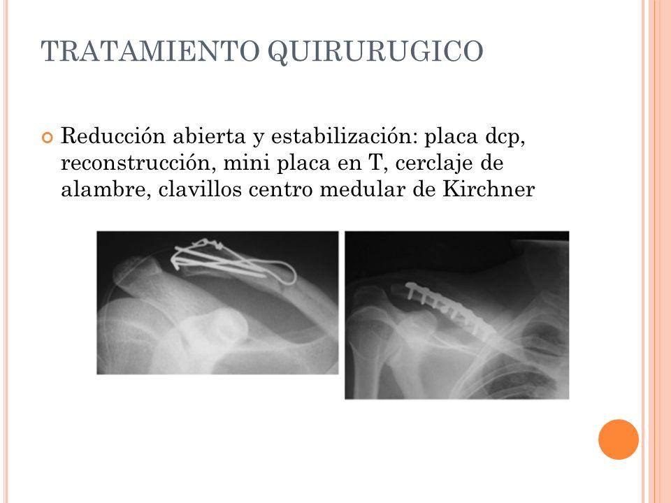 TRATAMIENTO QUIRURUGICO Reducción abierta y estabilización: placa dcp, reconstrucción, mini placa en T, cerclaje de alambre, clavillos centro medular