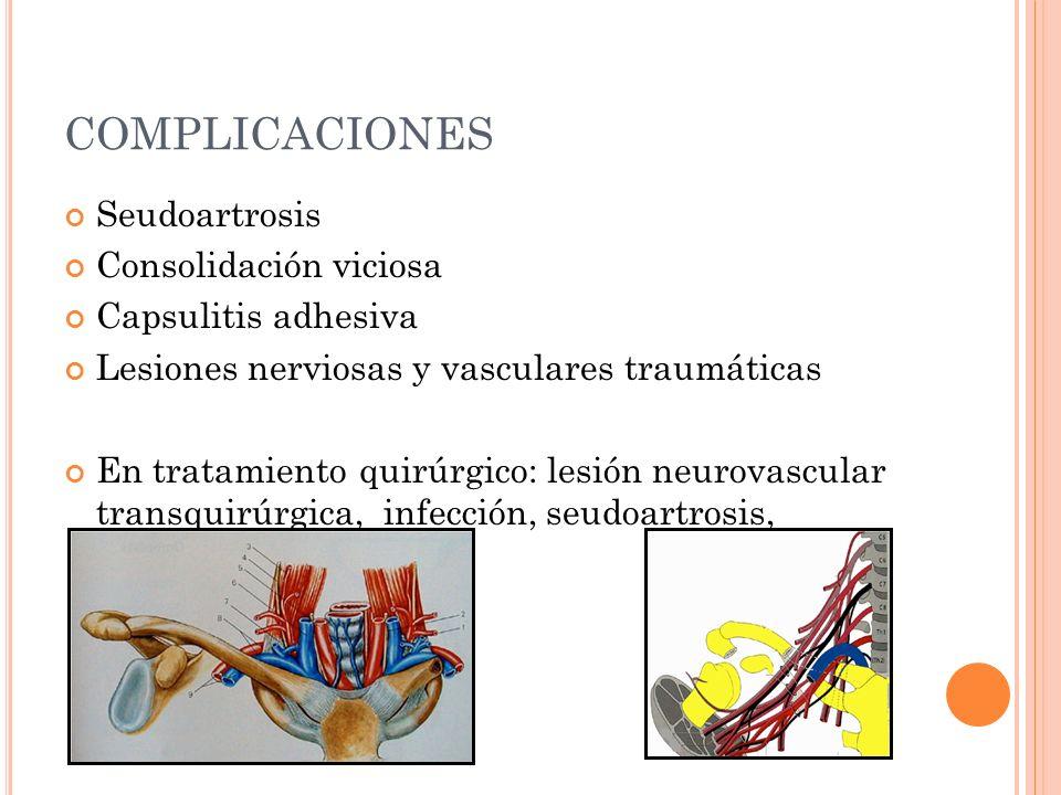 COMPLICACIONES Seudoartrosis Consolidación viciosa Capsulitis adhesiva Lesiones nerviosas y vasculares traumáticas En tratamiento quirúrgico: lesión n