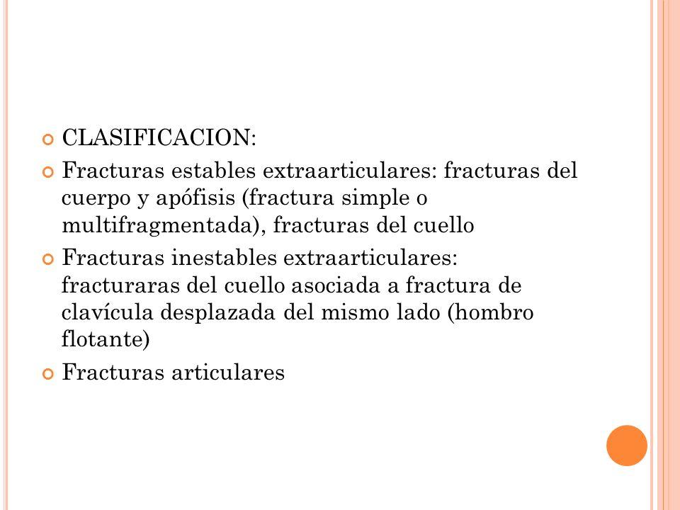 CLASIFICACION: Fracturas estables extraarticulares: fracturas del cuerpo y apófisis (fractura simple o multifragmentada), fracturas del cuello Fractur