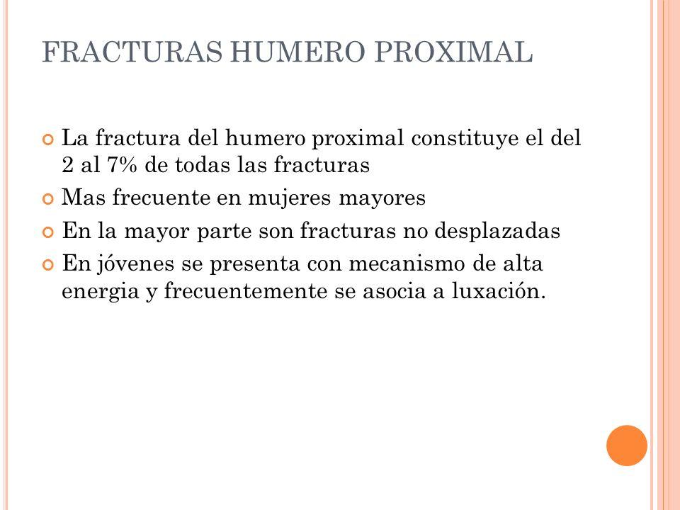 FRACTURAS HUMERO PROXIMAL La fractura del humero proximal constituye el del 2 al 7% de todas las fracturas Mas frecuente en mujeres mayores En la mayo