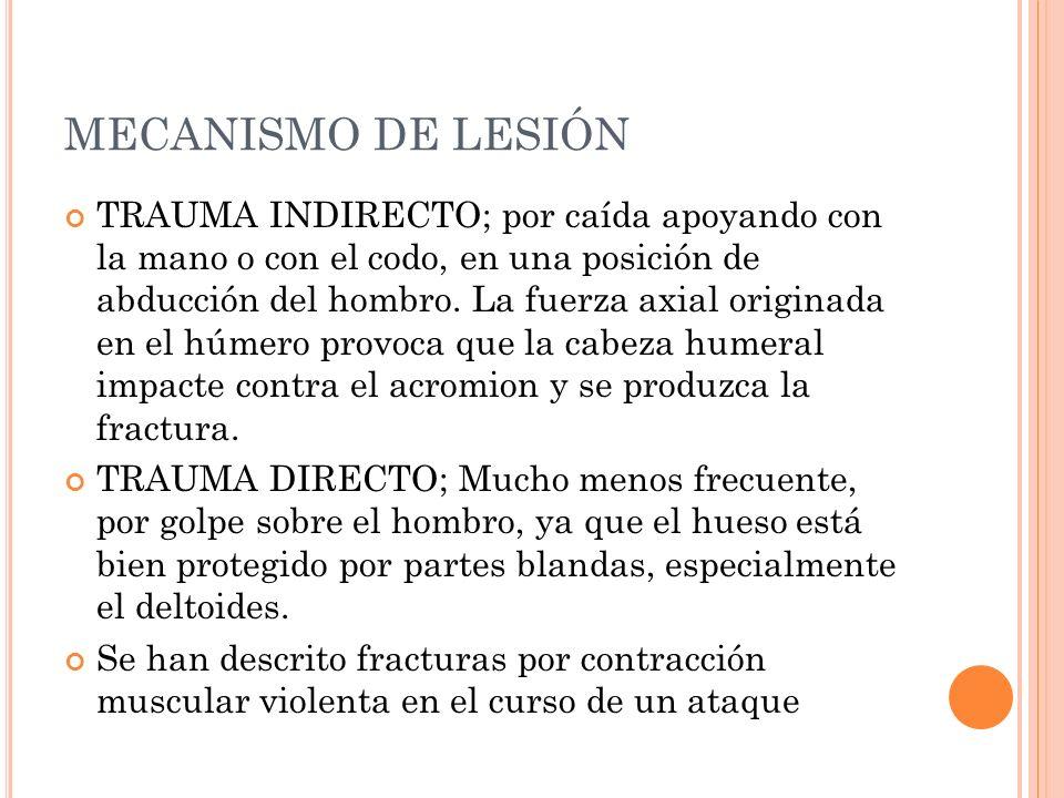 MECANISMO DE LESIÓN TRAUMA INDIRECTO; por caída apoyando con la mano o con el codo, en una posición de abducción del hombro. La fuerza axial originada