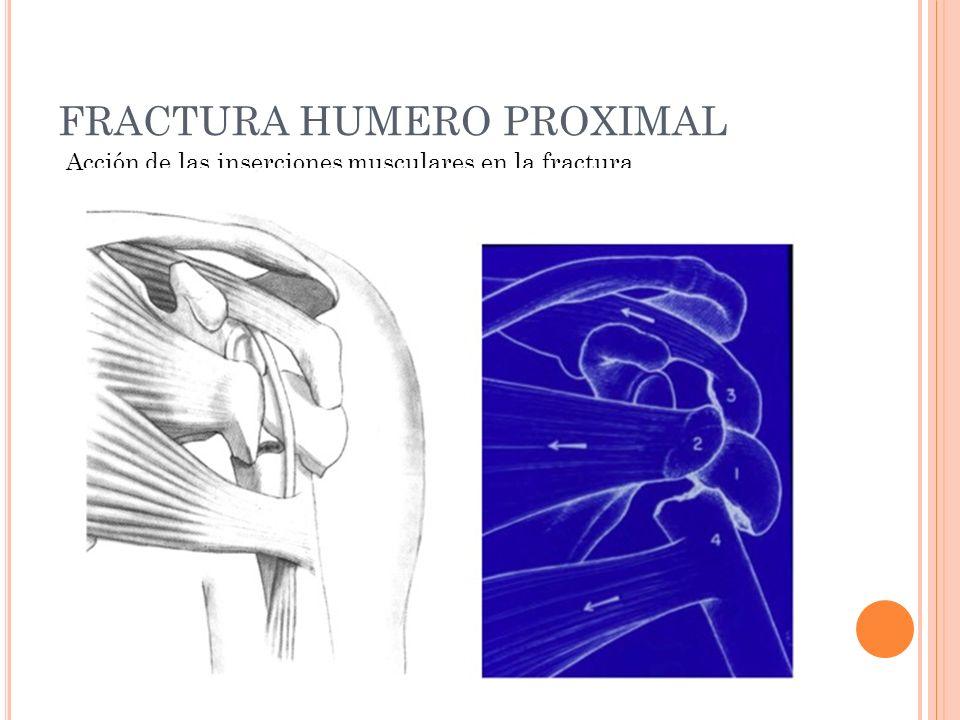 FRACTURA HUMERO PROXIMAL Acción de las inserciones musculares en la fractura