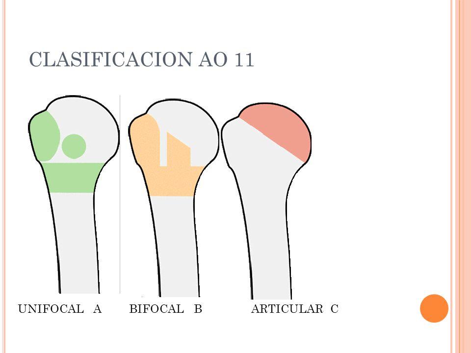 CLASIFICACION AO 11 UNIFOCAL ABIFOCAL BARTICULAR C