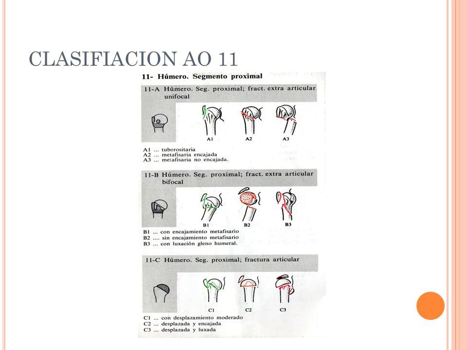 CLASIFIACION AO 11