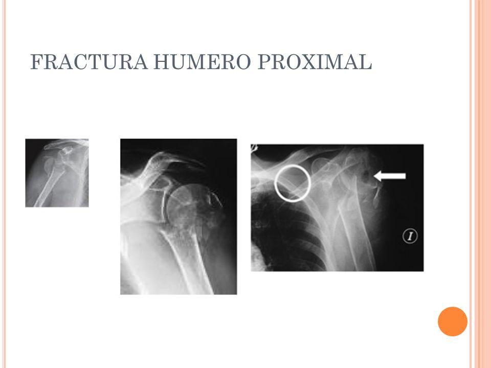 FRACTURA HUMERO PROXIMAL