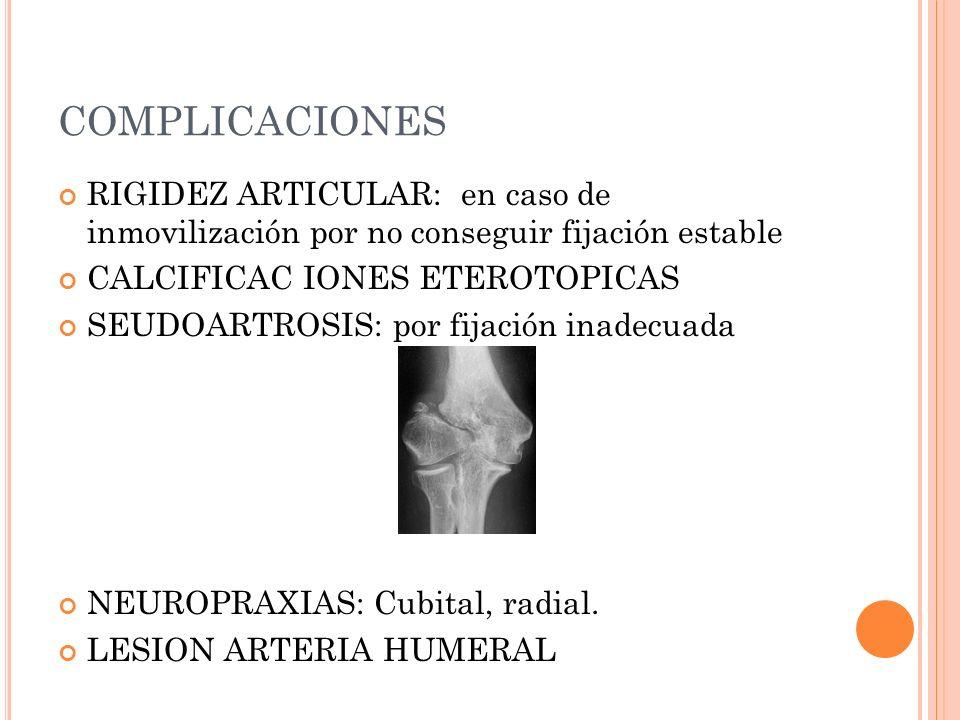 COMPLICACIONES RIGIDEZ ARTICULAR: en caso de inmovilización por no conseguir fijación estable CALCIFICAC IONES ETEROTOPICAS SEUDOARTROSIS: por fijació