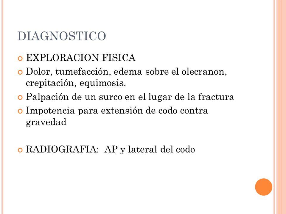 DIAGNOSTICO EXPLORACION FISICA Dolor, tumefacción, edema sobre el olecranon, crepitación, equimosis. Palpación de un surco en el lugar de la fractura