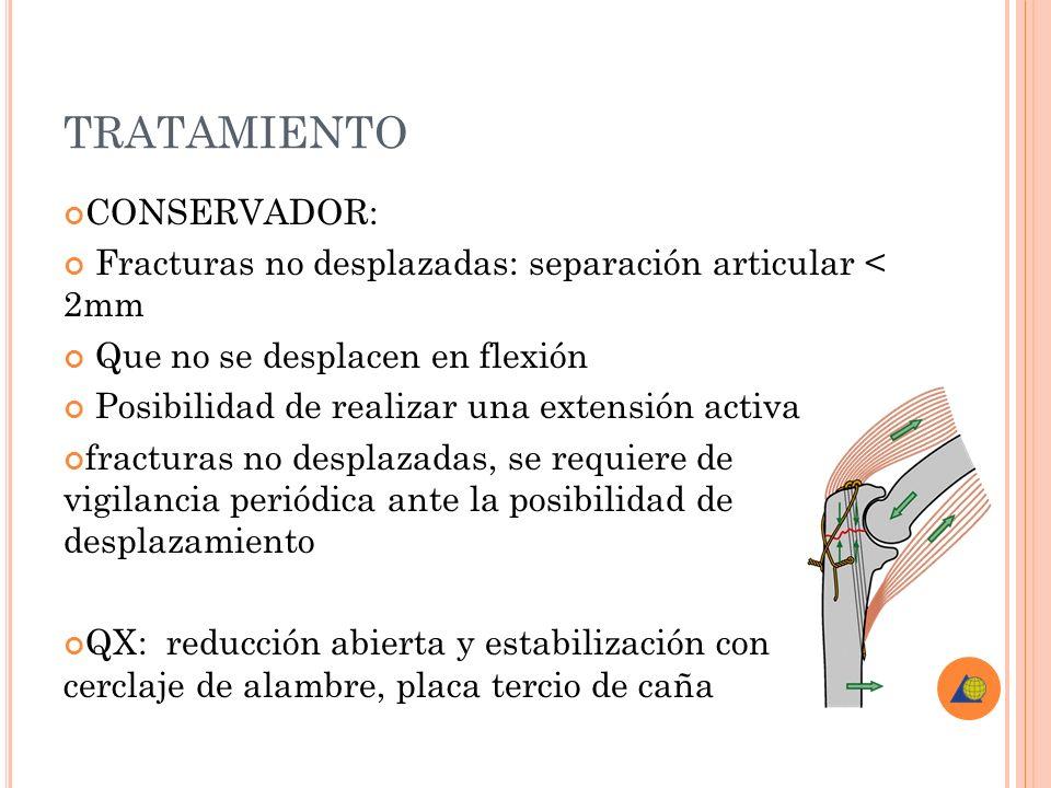 TRATAMIENTO CONSERVADOR: Fracturas no desplazadas: separación articular < 2mm Que no se desplacen en flexión Posibilidad de realizar una extensión act