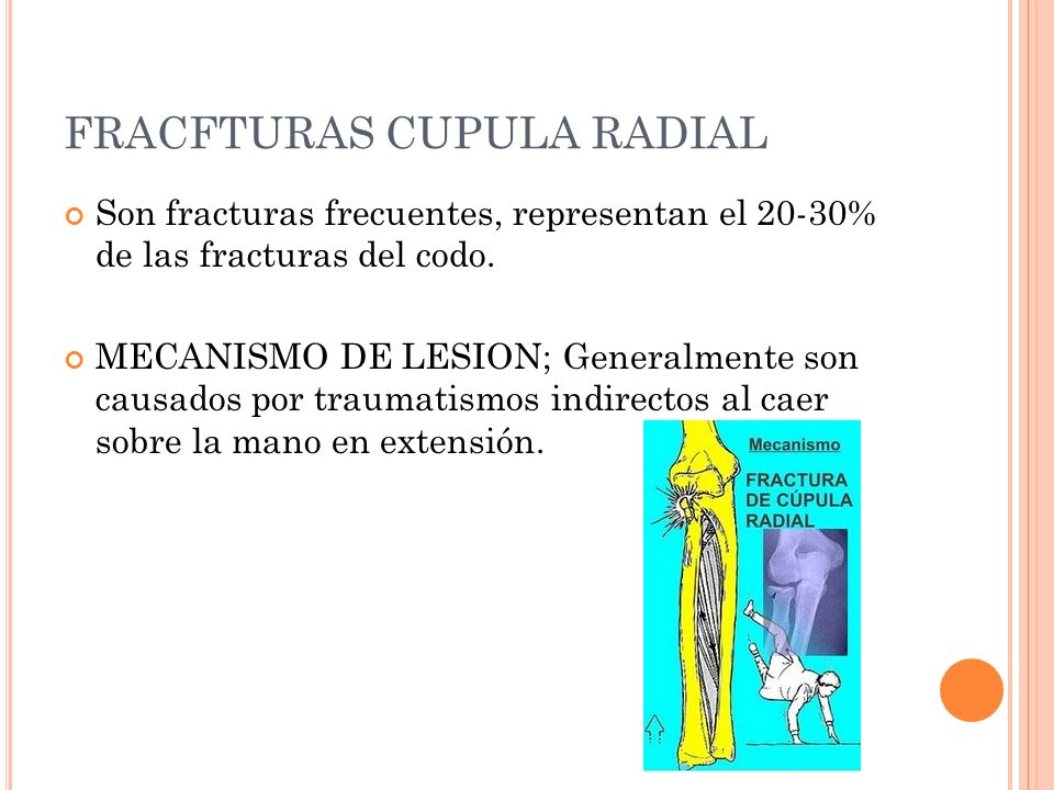FRACFTURAS CUPULA RADIAL Son fracturas frecuentes, representan el 20-30% de las fracturas del codo. MECANISMO DE LESION; Generalmente son causados por