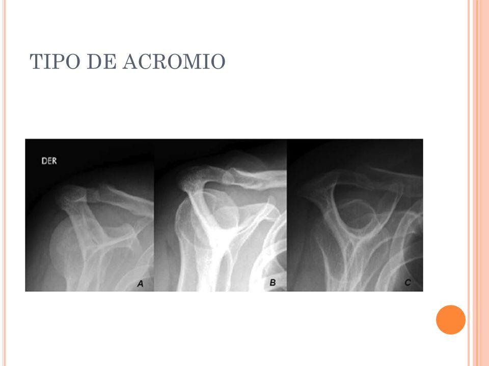 TIPO DE ACROMIO