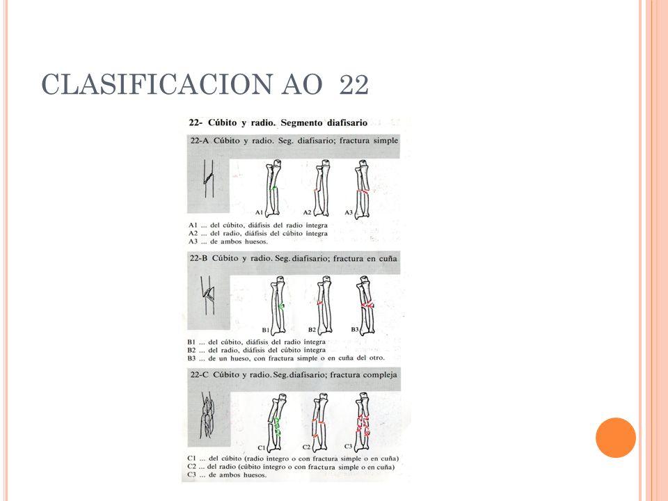 CLASIFICACION AO 22