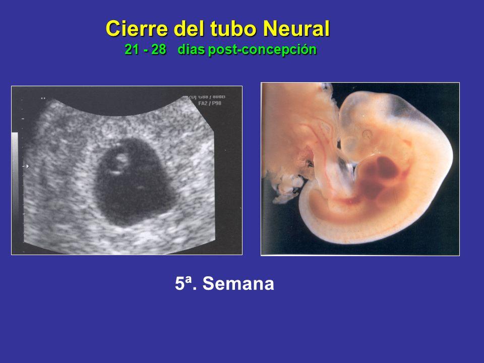 NORMA OFICIAL MEXICANA NOM -034-SSA2-2002 Para el Control y Prevención de los Defectos al Nacimiento