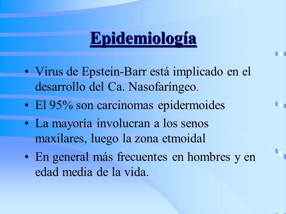 Epidemiología Virus de Epstein-Barr está implicado en el desarrollo del Ca. Nasofaríngeo. El 95% son carcinomas epidermoides La mayoría involucran a l